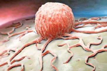 Kanser Hastalığı ve Ganoderma