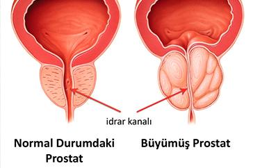 Reishi Mantarı ve Prostat Büyümesi